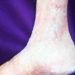 Venenbedingt offenes Bein nach Verbandswechsel