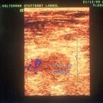 Farb-Duplex-Sonografie